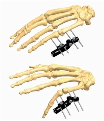 骨折1.5